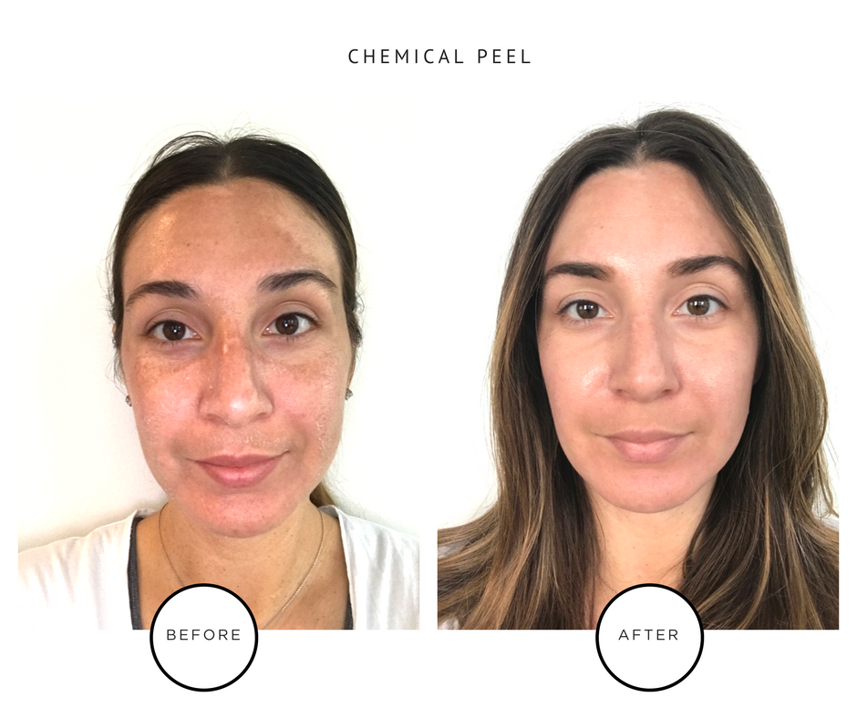 Chemical Peel Results_Park Avenue Skin Solutions