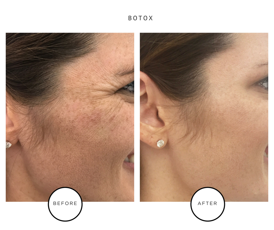 Best Botox - Park Avenue Skin - NYC Dermatology