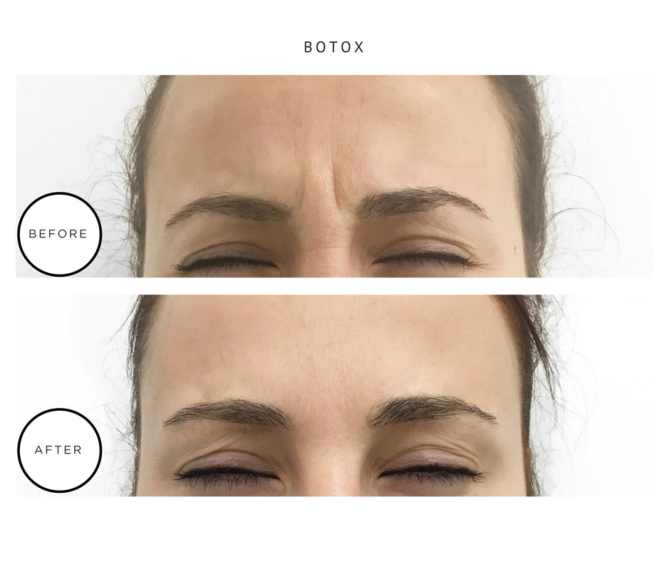 Botox Before & After_Park Avenue Skin Solutions_NYC Dermatology