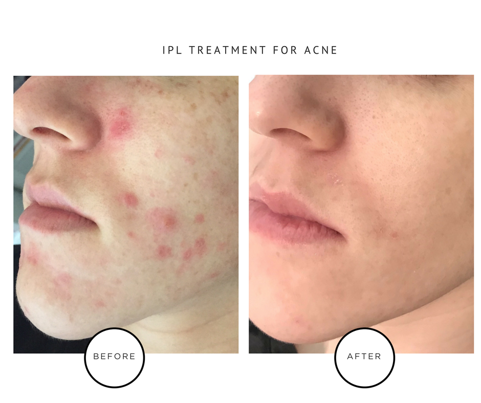 IPL Laser Treatments for Hormonal Adult Acne_Park Avenue Skin Solutions