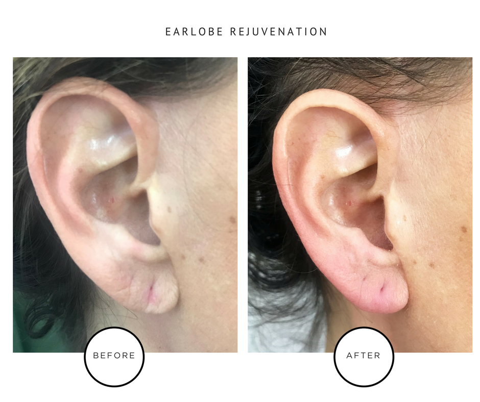 Earlobe Rejuvenation_Park Avenue Skin Solutions