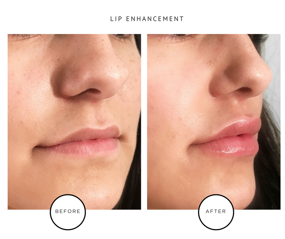 Best Lip Fillers NYC_Before & After_Park Avenue Skin Solutions Lauren Abramowitz