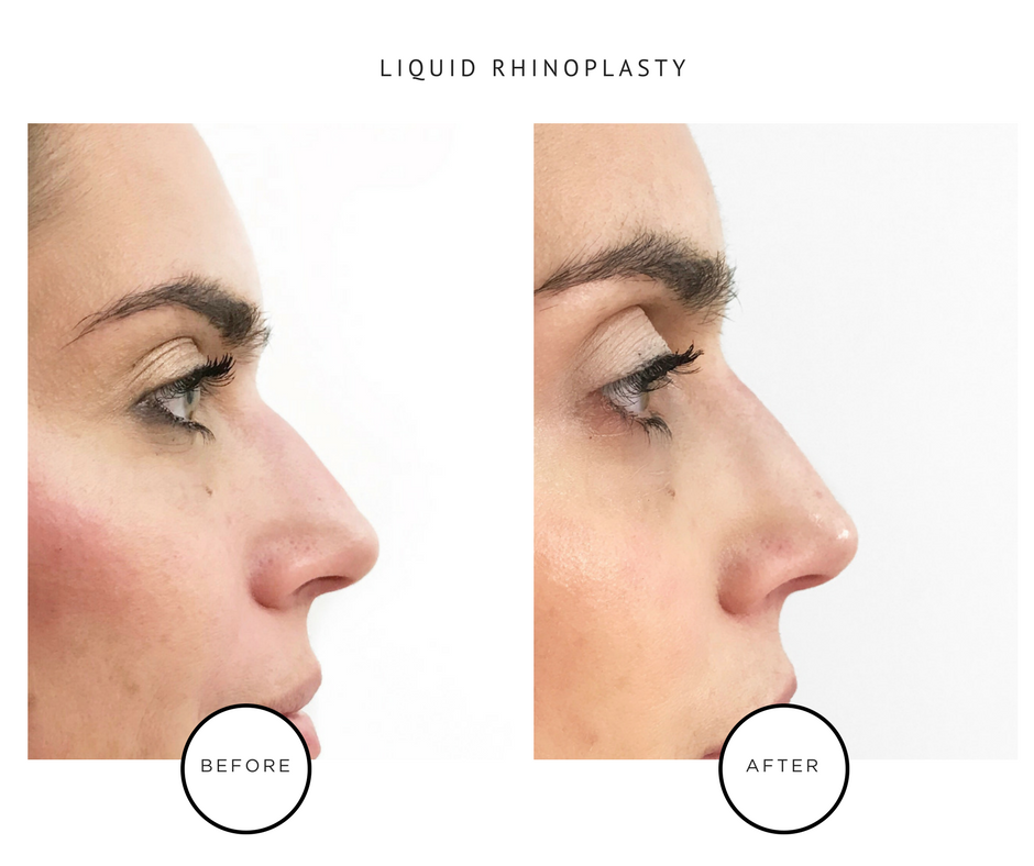 Non-Surgical_Rhinoplasty_Nose Job _Park Avenue Skin Solutions_NYC