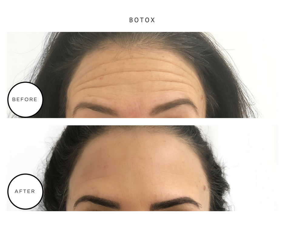 BOTOX FINAL FOR SITE-4.PNG