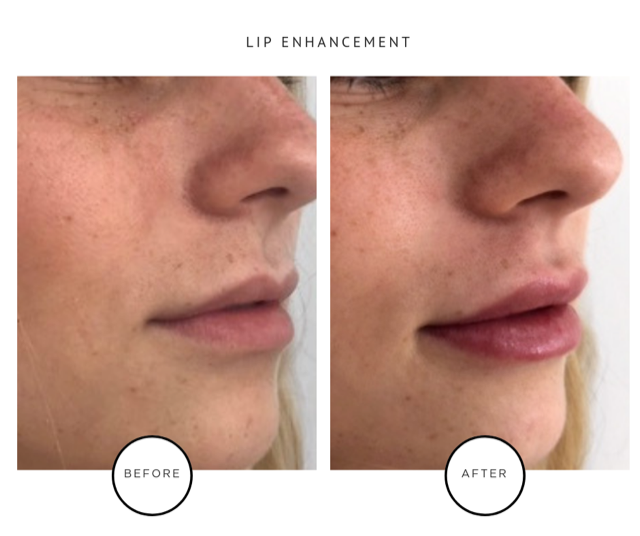 Lip Fillers Downtown NYC Tribeca ParkAveSkinSolutions.png