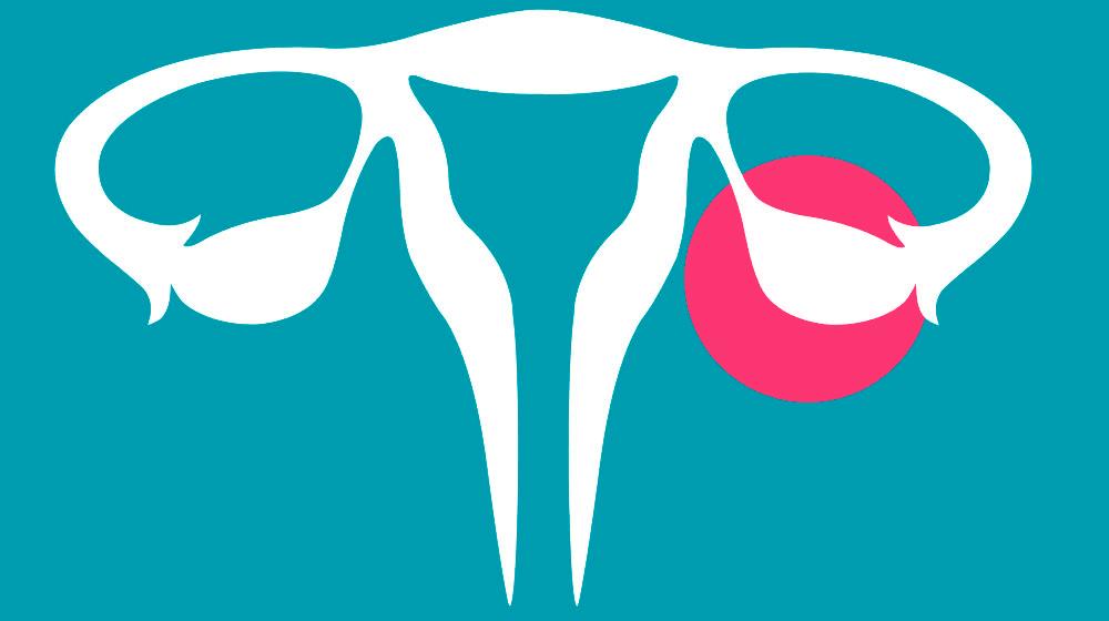 ....Schematische Zeichnung von Gebärmutterkörper, Eileiter und Eierstock (rubinrot eingekreist). ..Schematic drawing of the uterus, fallopian tubes and ovaries (highlighted in red). ....