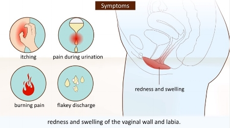 Sign of a vaginal yeast infection