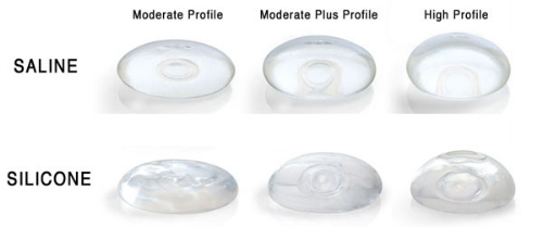 Types of boob implants
