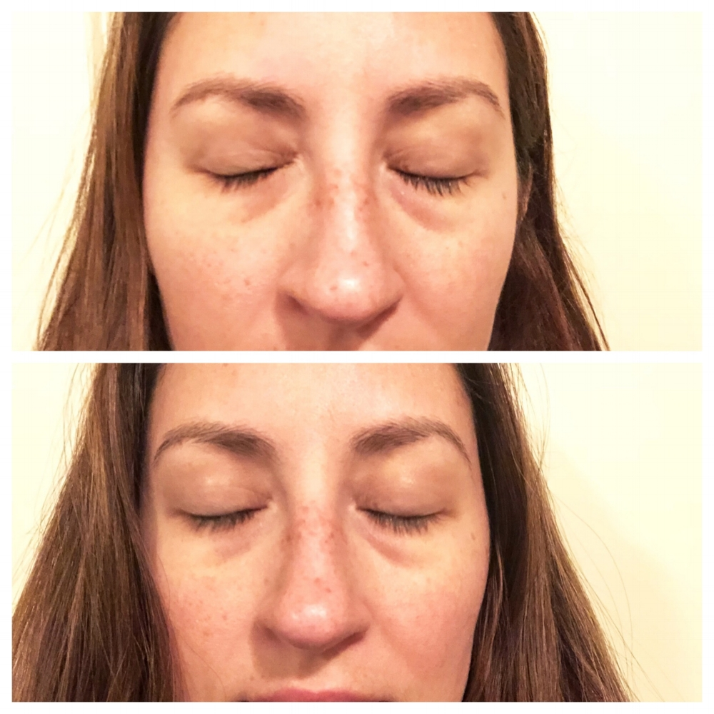 Before (Top) -  An unfortunately very real close up of my tired eyes before applying the eye cream for the first time.   After (Bottom)-  As you can see (although changes are minimal), the cream did seem to brighten and depuff my under eye area slightly.  These results seemed to be consistent after every time I used the product however long term results were not evident.
