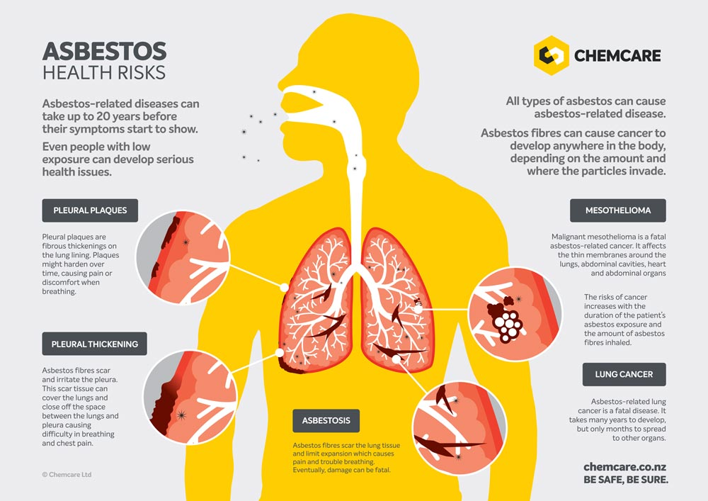 Infographic showing the health risks of inhaling asbestos fibres