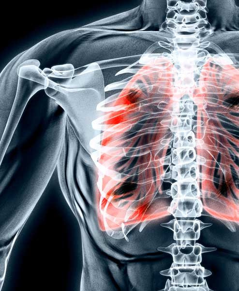 lungs-xray.jpg
