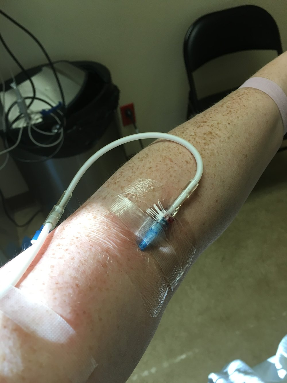 An intralipid infusion