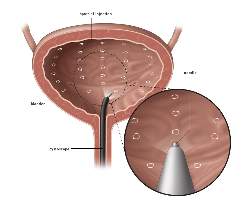 Cystoscopy And Intravesical Botox Injection Gold Coast Urology