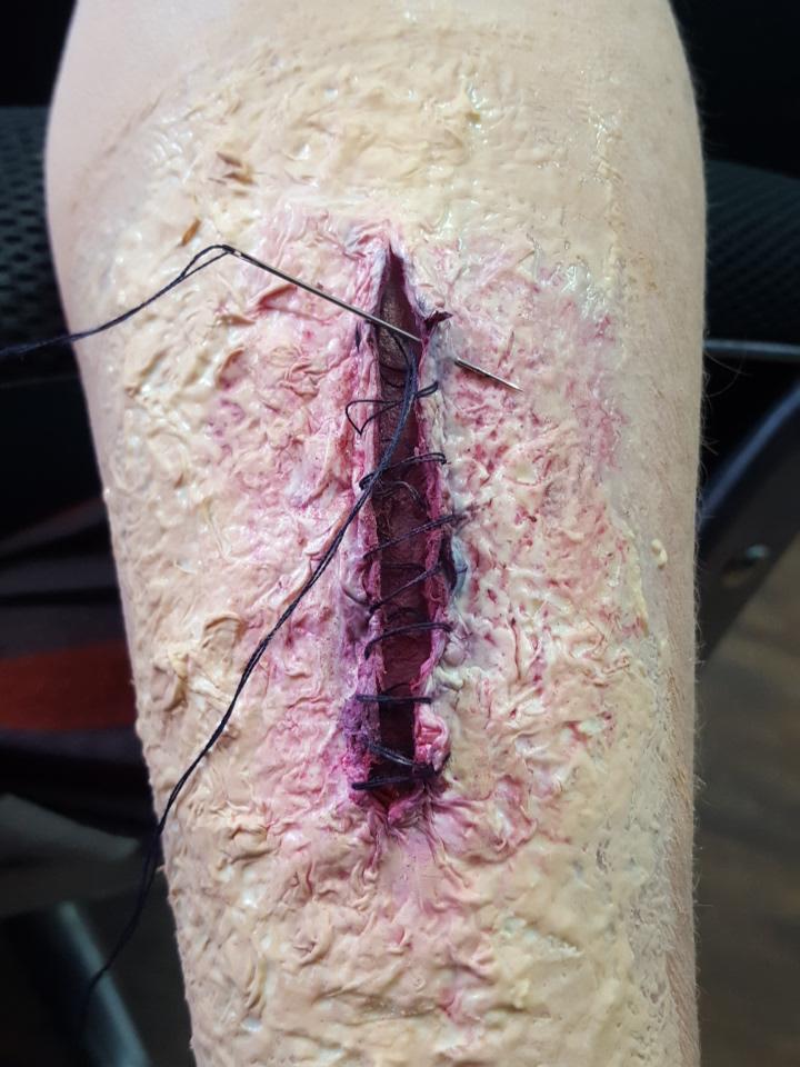 stitches 2.jpg