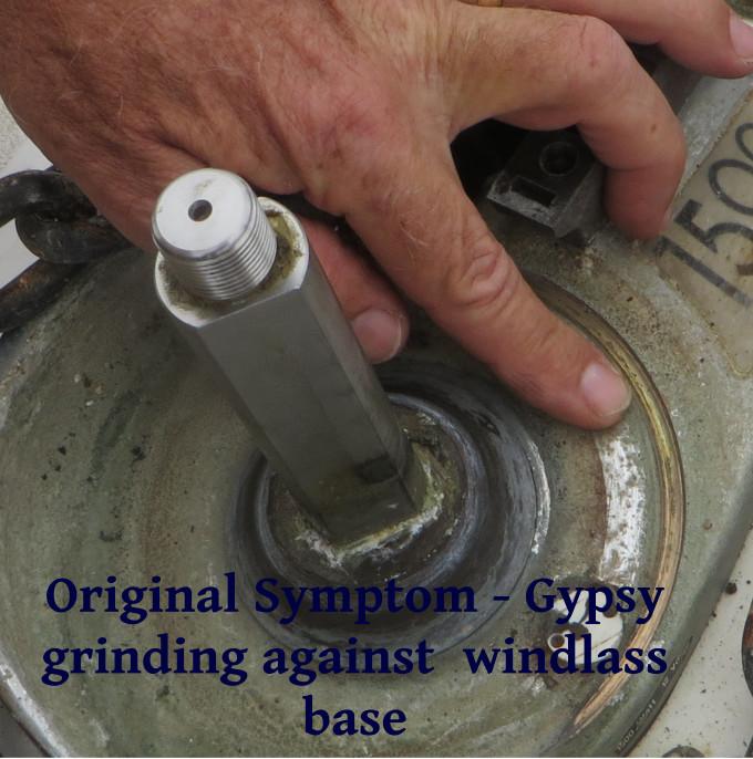 windlass symptom