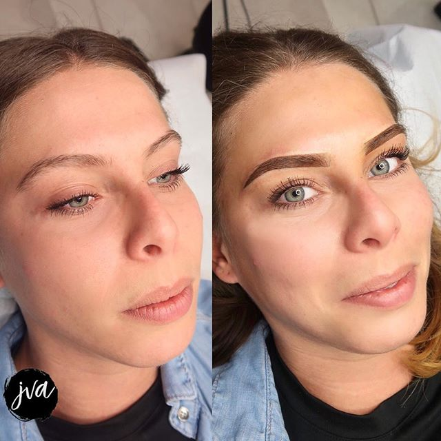When you can perfectly match your clients naturals! 😍 Beautiful transformation with minimal redness and swelling👌 . . . . ✖️$350 w/ touch ups (New brows only) ✖️$400 coverup/correction w/ touch up ✖️Brows will last 1-2 years depending on lifestyle ✖️Suitable for anyone who wants a natural look - ideal for all skin types! (dry, combination, oily) ✖️painless - numbing is used throughout ✖️visit jvartistry.com for bookings | text or email for consultations ♥️ _______________________________________ $50 nonrefundable deposit is required to secure booking —————————————————