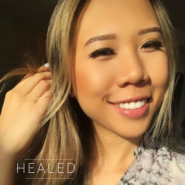 ✨HEALED ombré brows in less than a week after touch up!✖️Swipe to see her cute video update 😭♥️ . . . . ✖️2 December Slots Left ‼️ ▪️$350 Powdered Ombré (new brows only) ▪️Additional $50 for coverups/corrections ▪️Brows will last 1-2 years depending on lifestyle ▪️NOT painful! Topical numbing is used ▪️Suitable for anyone who wants a natural look - ideal for all skin types! (dry, combination, oily) ✖️visit jvartistry.com for bookings | text or email for consultations  _______________________________________ $50 nonrefundable deposit is required to secure booking ————————————————— .