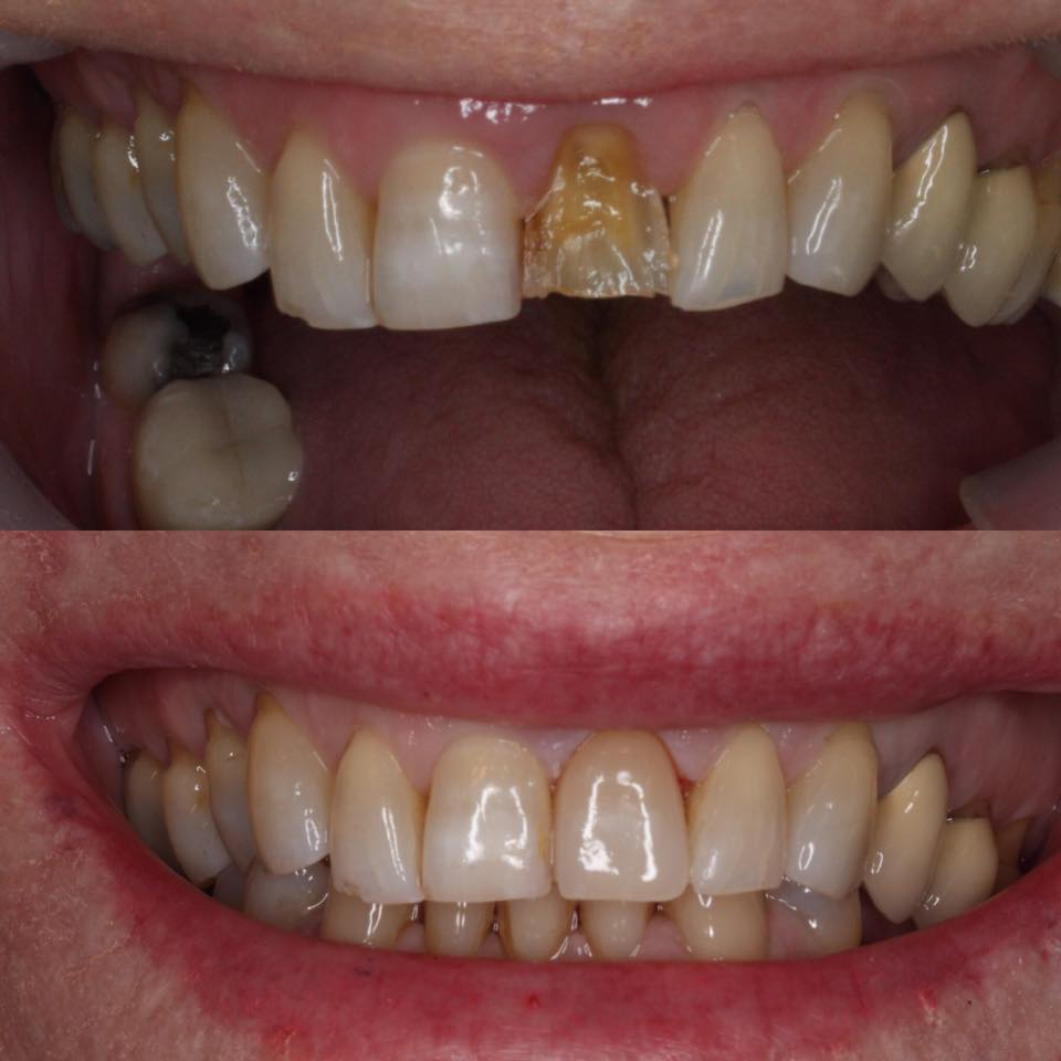 CASE PORCELAIN CROWN FRONT TOOTH.jpg