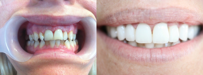 CASE SMILE MAKEOVER.jpg