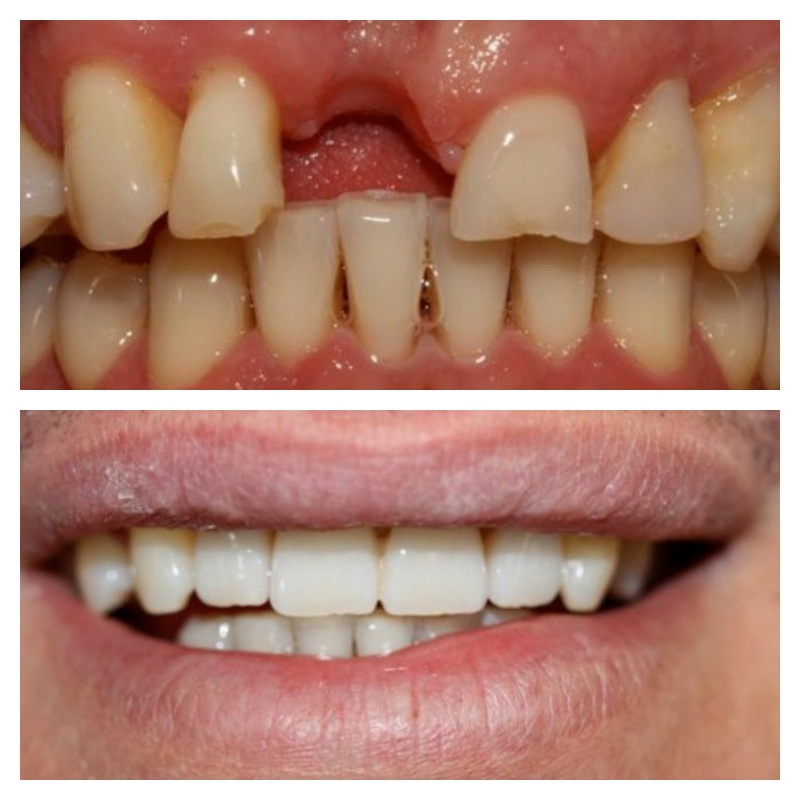 teeth whitening / 3 unit bridge + veneer / dentist leila haywood / dental hygienist christine richards