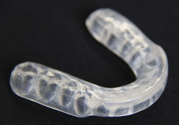 occlusal splint brisbane