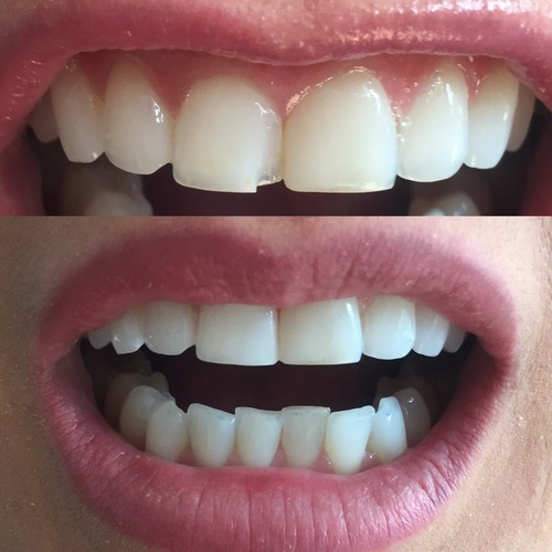 tooth bonding / 2 front teeth / female patient in 30's / dentist leila haywood