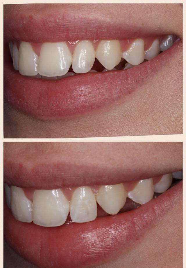 tooth bonding female 20's / dentist leila haywood