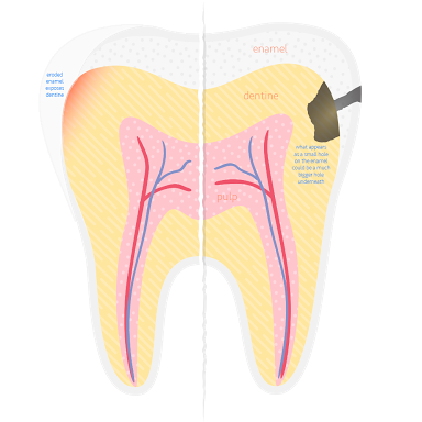 Plaque bacteria sticks in between the teeth in the hard to reach areas where the teeth meet each other. Cavities can easily begin in this vulnerable area where the tooth structure is thin and can damage the tooth extensively without being able to be seen by looking at the tooth. It is usually painless until there is a very large and deep cavity present.