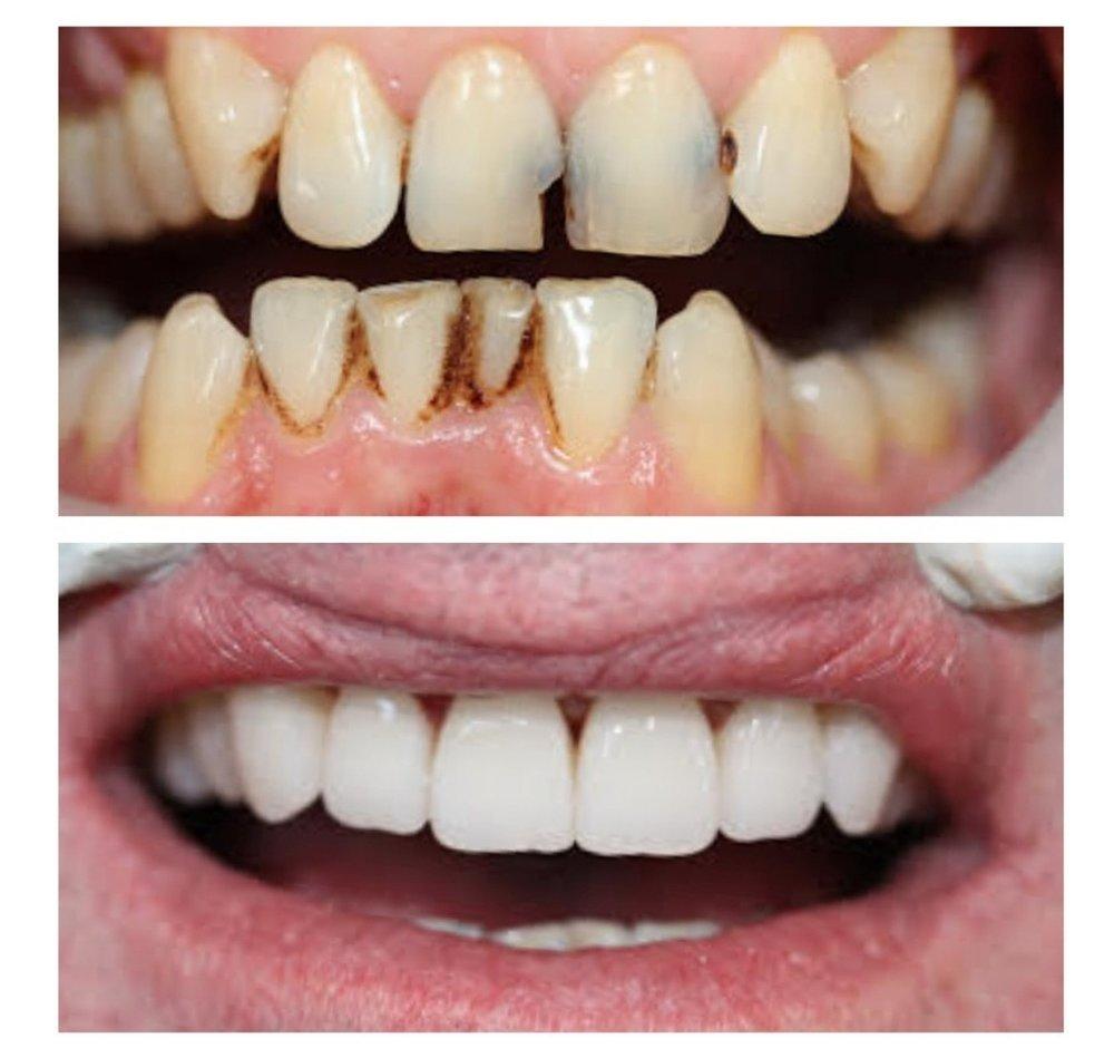 Dental+crowns+Brisbane+Dentist