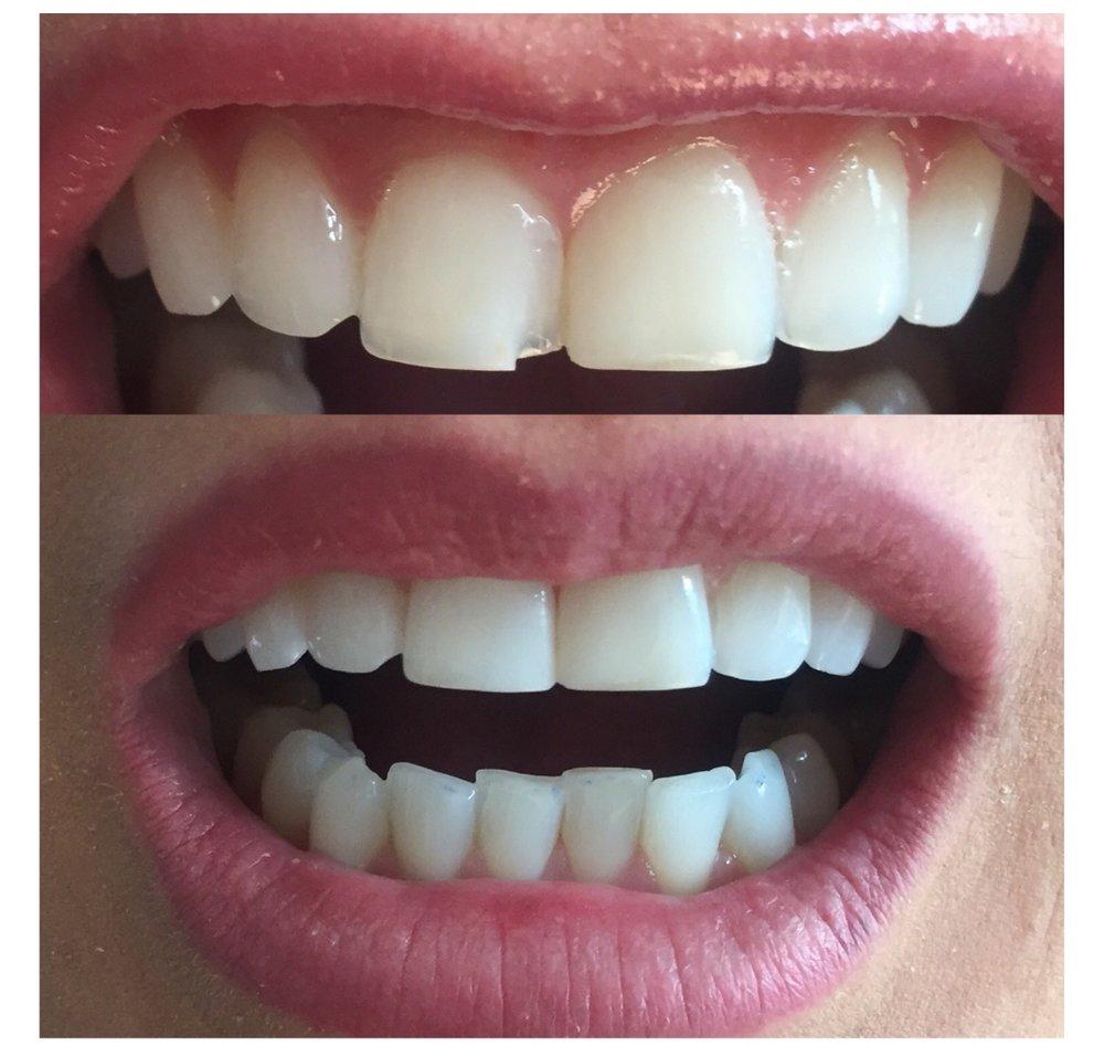 tooth bonding.jpg