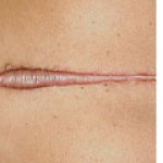 Keloids A focally raised, itchy scar that extends over normal tissue. May develop up to several years after injury and does not regress without treatment. Surgical excision is often followed by recurrence.