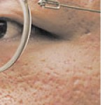Atrophic Flat and depressed below the surrounding skin. Generally small and often round with an indented or inverted centre. Commonly arise after acne or chickenpox.