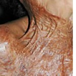Contractures Scars that cross joints or skin creases at right angles are prone to develop shortening or contracture. Occur when the scar is not fully matured. Often tend to be hypertrophic, and are typically disabling and dysfunctional. Common after burn injuries.