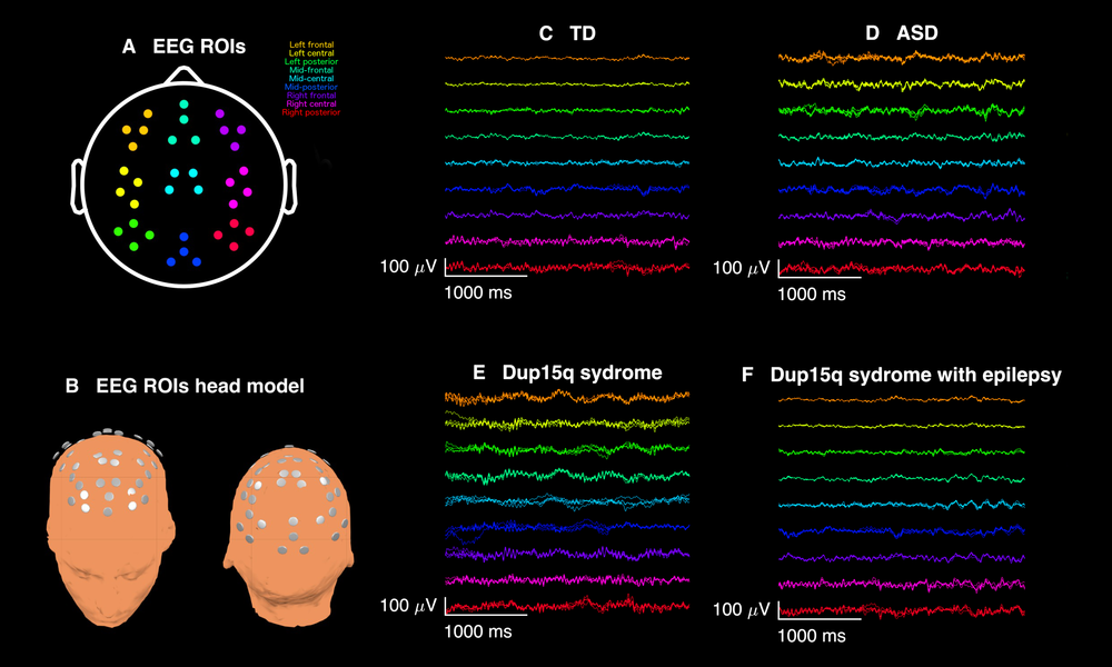 Figure 1, Frohlich et al., 2016 . Qualitative analysis of spontaneous electroencephalogram (EEG) recordings from participants with Dup15q syndrome revealed overt beta frequency oscillations apparent upon visual inspection. (A) EEG recordings from 9 scalp regions of interest (ROIs) were analyzed: left frontal (orange), left central (yellow), left posterior (green), mid-frontal (aquamarine), mid-central (cyan), mid-posterior (blue), right frontal (purple), right central (pink), right posterior (red). (B) 3-dimenisonal head model showing ROI electrode locations. (C) 3 s of broadband EEG recordings from a representative 29-month-old TD child from 36 channels across 9 ROIs. (D) Same duration of EEG recorded from a 27-month-old child with nonsyndromic ASD. (E) EEG from a representative Dup15q syndrome participant (age 28 months) reveals spontaneous beta oscillations (SBOs) in virtually all channels and all ROIs. The overt quality of SBOs likely allows for their easy detection in clinical EEG recordings. By contrast, (F) a 43-month-old participant with both Dup15q syndrome and epilepsy does not show nearly such distinct SBOs. It is possible that beta activity is reduced in children with both Dup15q syndrome and epilepsy.