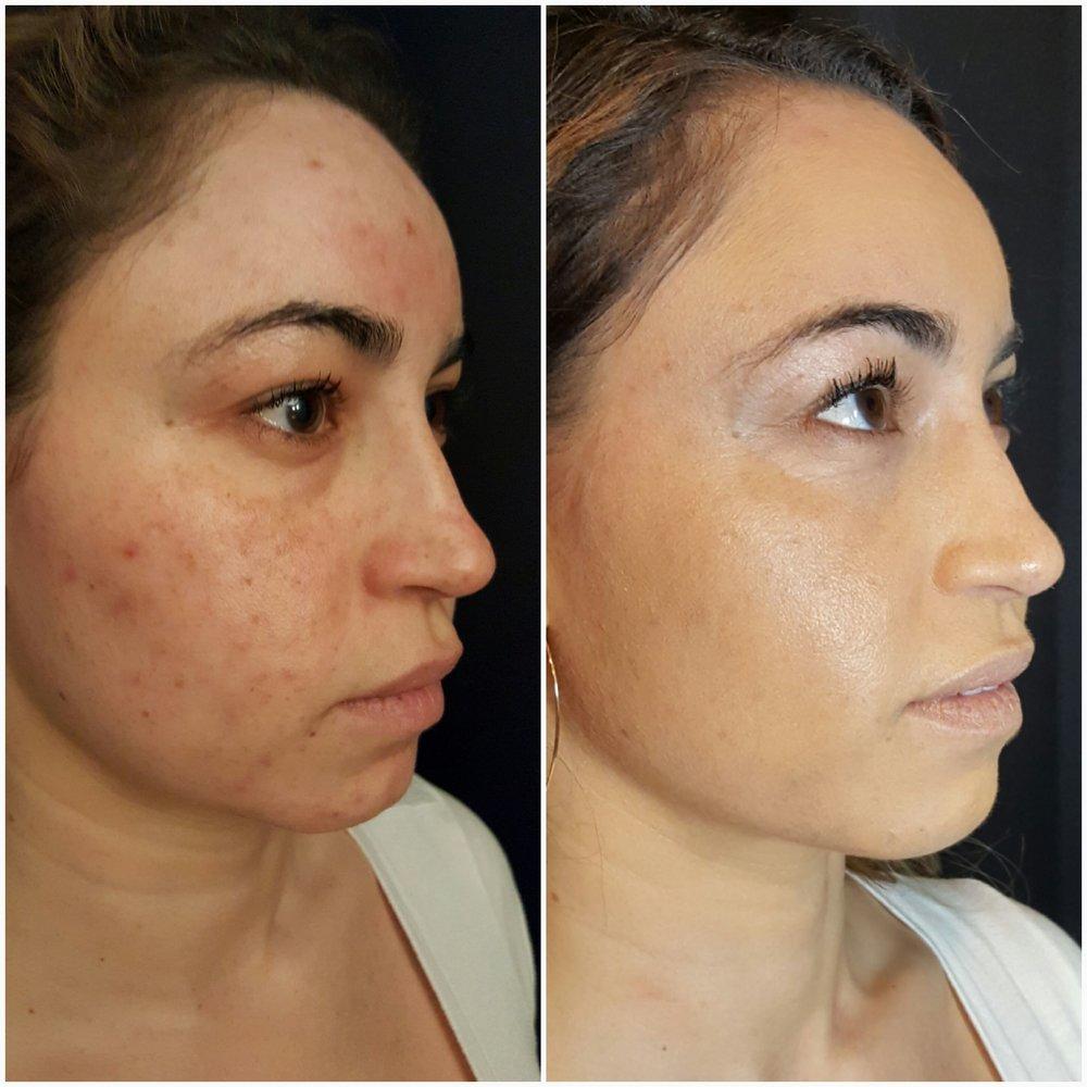 Facials acne scars