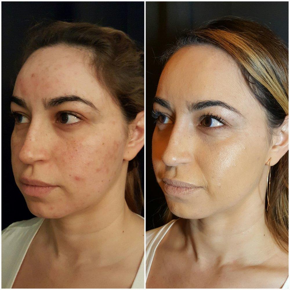 acne2.jpeg