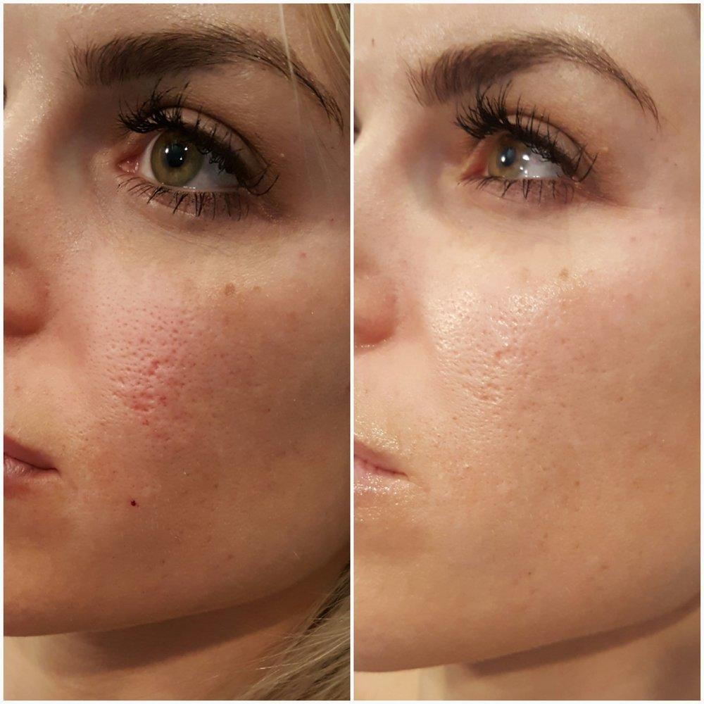 acne3.jpeg