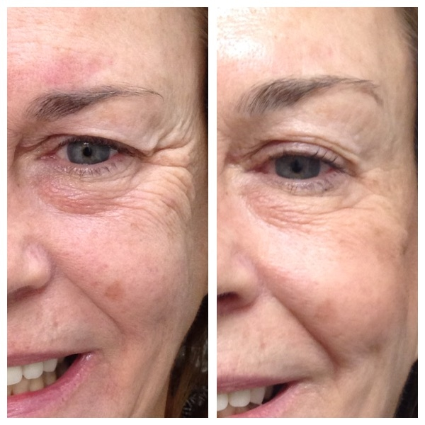 Nonsurgical Blepharoplasty- Although she is smiling in both pictures and eyebrow placement remains unchanged, her upper eyelid is retracted in the after picture on the right exposing her upper lid, lash line, and opening up the aperature of her eye.