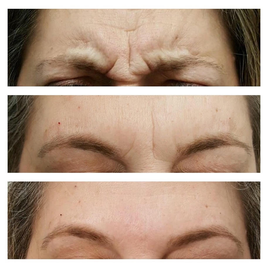 "Forehead Wrinkles -  Elimination of those dreaded ""elevens"" with simple quick procedures."