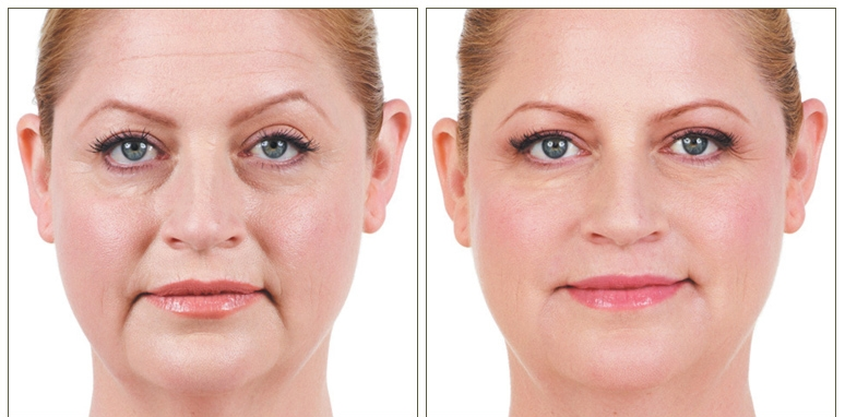 Mid-Face Volume Correction -  Mid face volume correction which improves under eye hollows, nasolabial folds (smile lines), and marionettes.