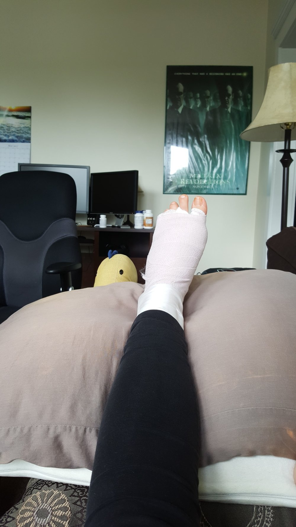 My foot post-surgery, with a creeping dinosaur keeping an eye on me