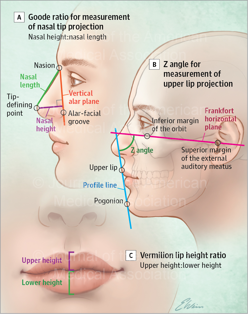 Association of Increasing Nasal Tip Projection With Lip Position in Primary Rhinoplasty