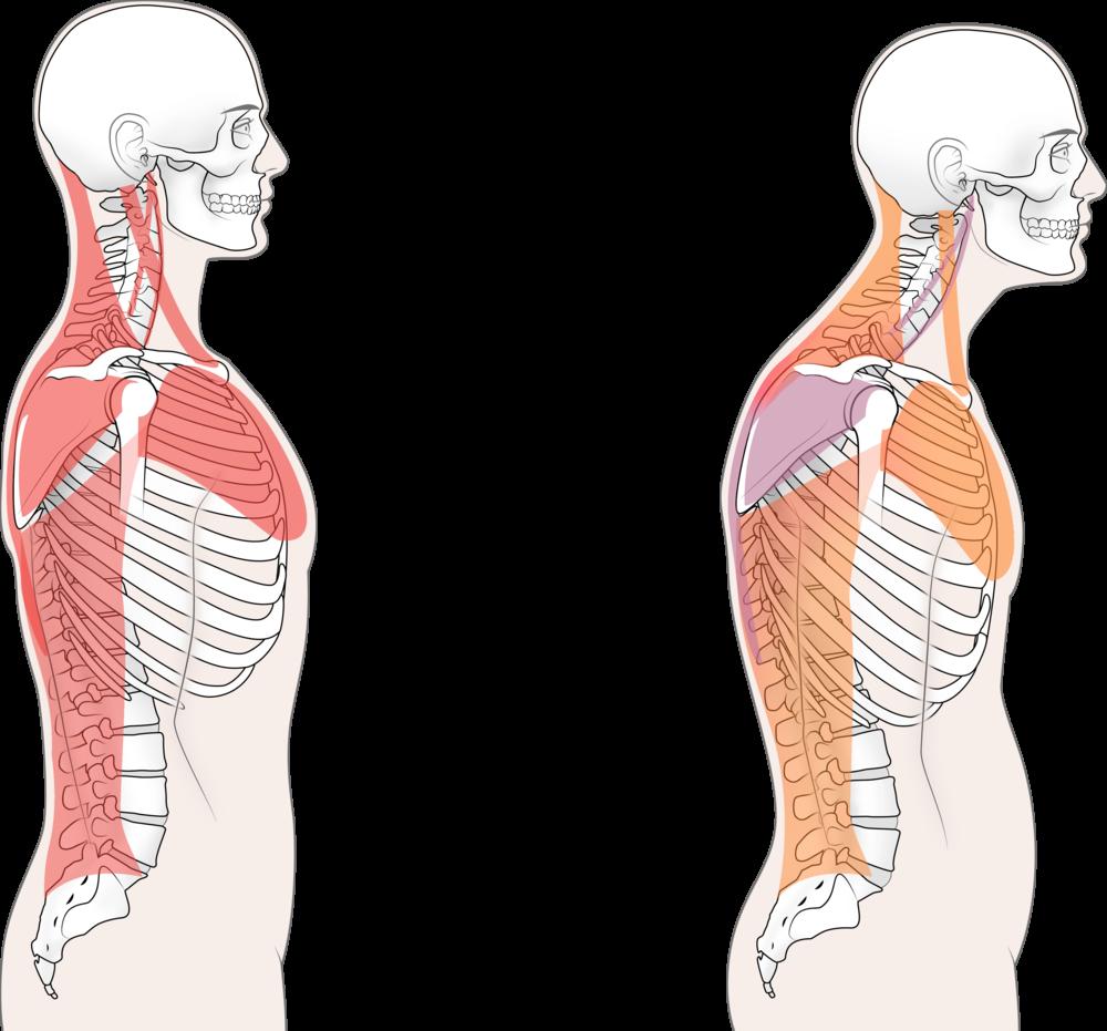 postural imbalances -