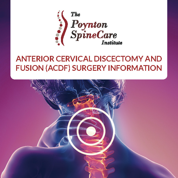 Anterior Cervical Discectomy & Fusion (ACDF) Surgery
