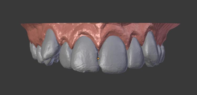 Teeth top: start