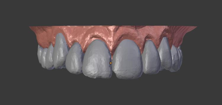 Teeth top: finish