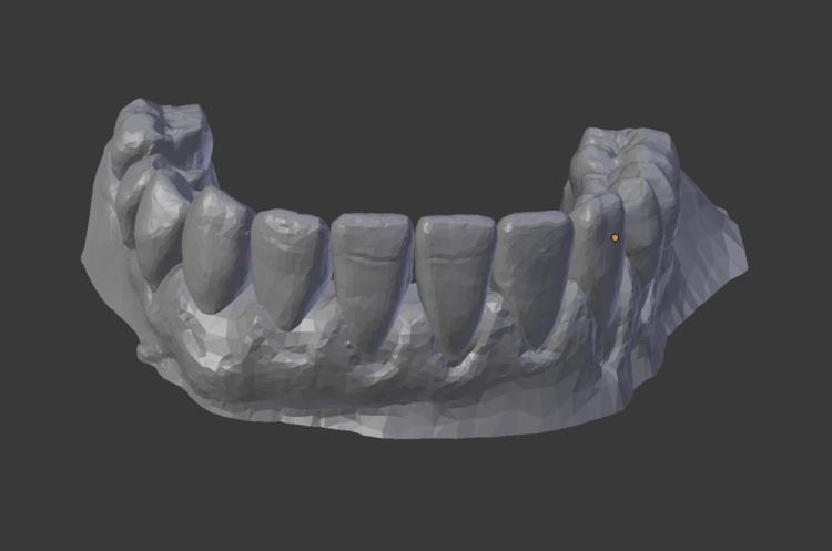 Teeth bottom: finish