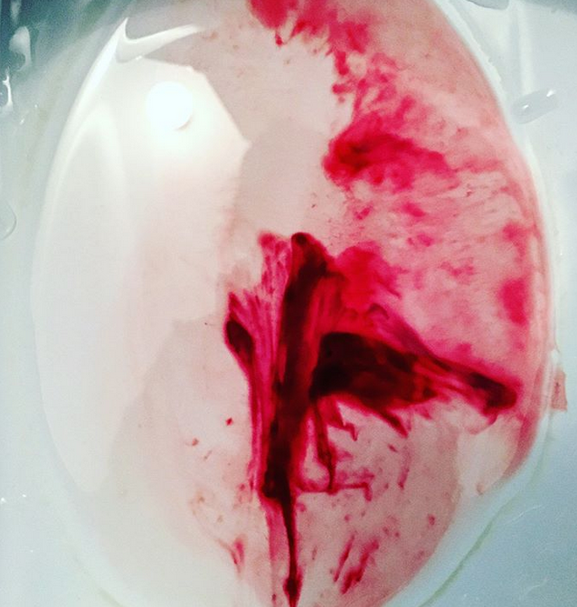 Ruckedigu, Blut ist im Klo - Foto: Ara Dn. Eden Instgram:  ruckediguu.pure.art