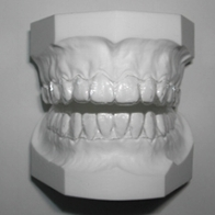 Molded (Essix) Retainers  are designed to maintain the new position of your teeth. They are made of a special heat-molded plastic material. To be effective, Molded Retainers must be worn as instructed by the doctor. They fit snugly over your teeth and are removable.