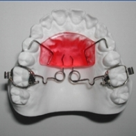 A  Pendex  is made of acrylic and wires and sits on the top of your mouth. It's attached by wires bonded to your first pre-molars, and by wire arms that insert into upper first molar bands that have been cemented to your teeth. The purpose of the Pendex Appliance is to push your first molars back and create space in the upper. This appliance is not removable.